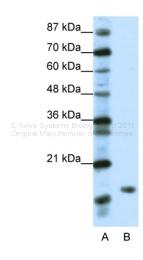 ARP38085_T100 - DR1 / NC2-beta