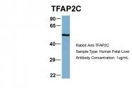 ARP38284_T100 - AP2-gamma / TFAP2C