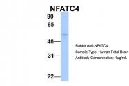 ARP38493_P050 - NFATc4 / NFAT3