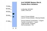 ARP38942_T100 - TARDBP
