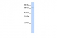 ARP39345_P050 - Kelch-like protein 26