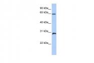 ARP39383_P050 - HOXA5 / HOX1C