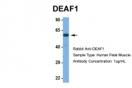 ARP39467_P050 - DEAF1