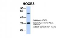 ARP39583_P050 - HOXB8 / HOX2D