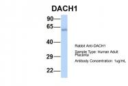 ARP39787_P050 - DACH1