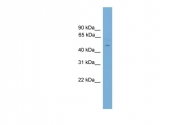 ARP40151_P050 - FOXC2 / FKHL14 / MFH1