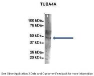 ARP40179_P050 - alpha Tubulin / TUBA4A / TUBA1