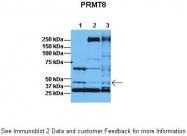ARP40193_T100 - PRMT8 / HRMT1L3