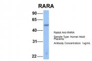 ARP40314_P050 - RAR-alpha / RARA