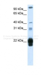 ARP40350_T100 - Placental Lactogen