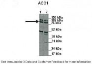 ARP40390_P050 - ACO1 / IREB1