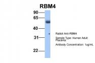 ARP40426_P050 - RBM4 / RBM4A