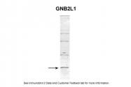 ARP40625_P050 - GNB2L1 / HLC7