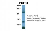 ARP40760_P050 - PUF60 / SIAHBP1