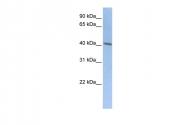 ARP41333_P050 - Doublecortin