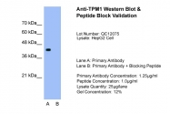 ARP41392_T100 - Tropomyosin-1 (TPM1)