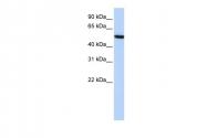 ARP41397_P050 - Histidine-rich glycoprotein / HRG