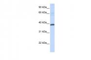 ARP41434_P050 - Hydroxyacid oxidase 2 / HAOX2