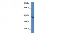 ARP41435_P050 - Hydroxyacid oxidase 2 / HAOX2