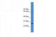 ARP41440_P050 - SLC13A3 / NADC3
