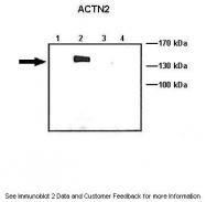 ARP41463_T100 - Alpha-actinin-2 / ACTN2