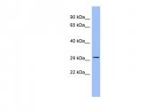 ARP41464_P050 - RAGE / AGER
