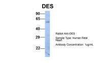 ARP41483_P050 - Desmin