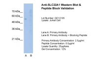 ARP41516_T100 - SLC22A1 / OCT1