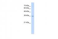 ARP41642_P050 - RAGE / AGER