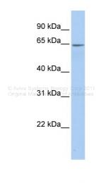 ARP41665_P050 - Arylsulfatase E