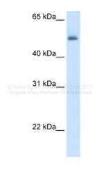 ARP41667_T100 - Arginosuccinase