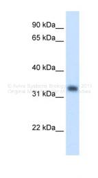 ARP41686_T100 - HMG-CoA lyase / HMGCL