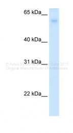 ARP41706_P050 - GLUT2 / SLC2A2