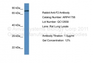 ARP41756_P050 - Prothrombin (F2)