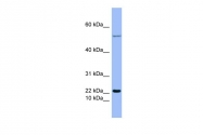 ARP42011_P050 - Glucagon