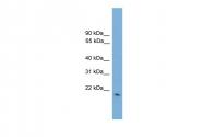 ARP42018_P050 - Glutathione peroxidase 2 / GPX2