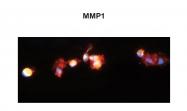 ARP42040_T100 - MMP-1