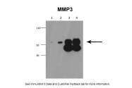 ARP42042_P050 - MMP-3