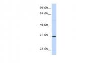 ARP42104_P050 - Stanniocalcin 1 / STC1