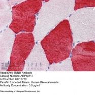 ARP42117_P050 - Skeletal muscle Troponin I