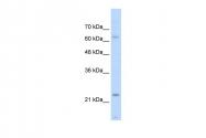 ARP42118_T100 - Skeletal muscle Troponin I
