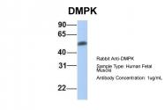 ARP42183_P050 - DMPK