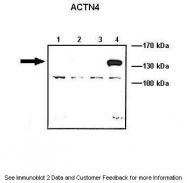 ARP42202_T100 - Alpha-actinin-4 / ACTN4