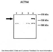 ARP42203_P050 - Alpha-actinin-4 / ACTN4