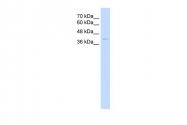 ARP42218_P050 - Haptoglobin