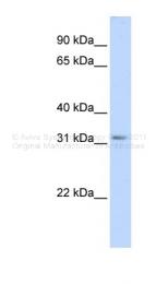ARP42334_P050 - Secretagogin (SCGN)