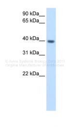 ARP42358_T100 - ITGB1BP2 / Melusin