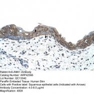 ARP42566_T100 - Ankyrin-1
