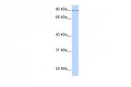ARP42684_P050 - Caldesmon
