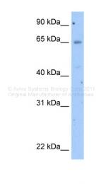 ARP42888_T100 - Occludin